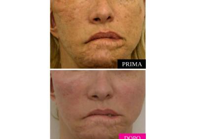 Cicatrice prima e dopo